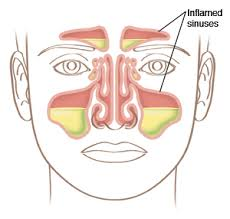 Inflamed sinuses